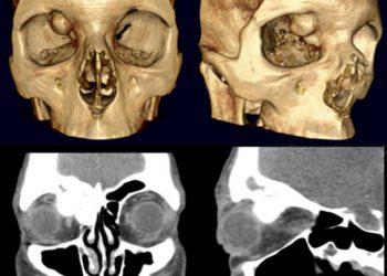 Orbital Osteoma là gì? Nguyên nhân, triệu chứng và hạng mục kiểm tra