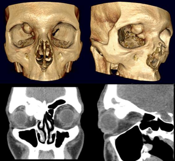 Orbital Osteoma