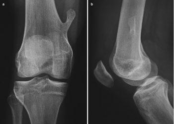 Osteochondroma là gì? Những cách phòng bệnh hiệu quả