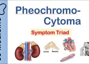 Pheochromocytoma là gì? Triệu chứng, chế độ ăn, phương pháp điều trị