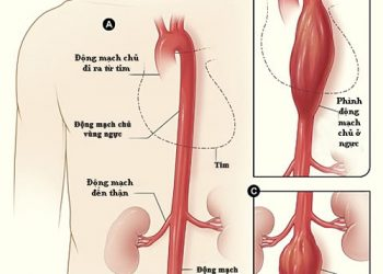 Phình tách động mạch chủ ngực là gì? Những cách chữa trị nhanh chóng