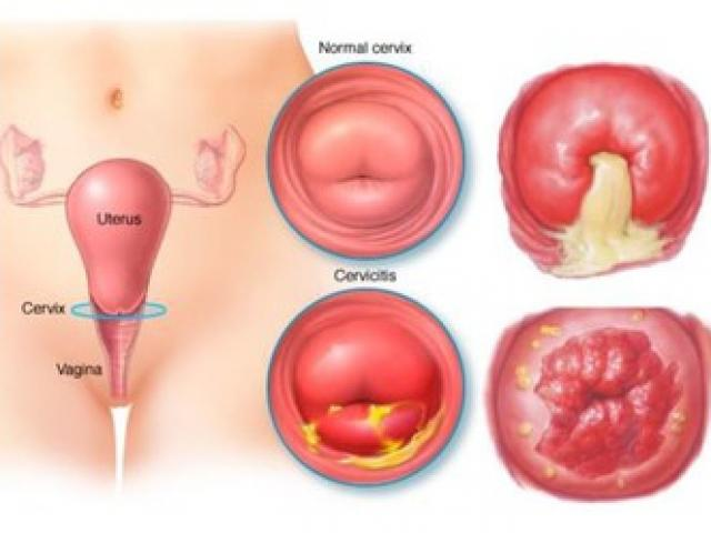 Sarcoma cổ tử cung
