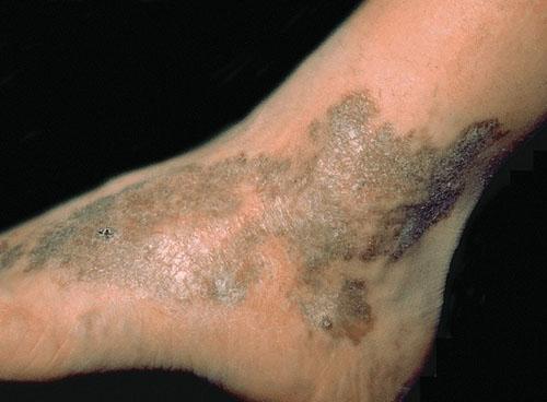 Sarcoma của Kaposi
