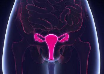 Sarcoma mô đệm nội mạc tử cung âm đạo là gì? Thông tin cần biết