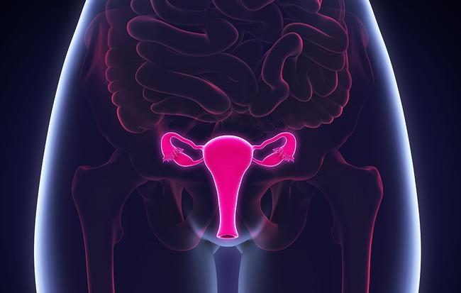 sarcoma mô đệm nội mạc tử cung âm đạo