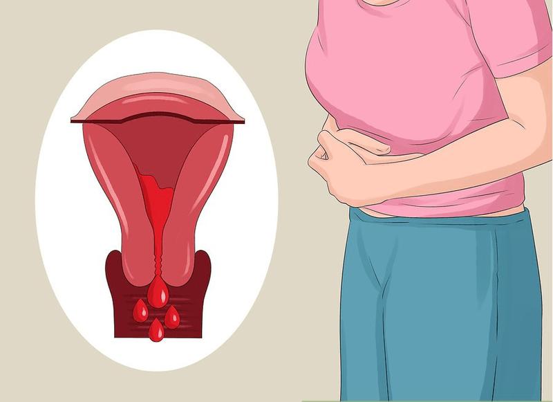 Sarcoma tử cung là bệnh gì?