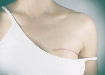 Tăng sản vú là gì? Nguyên nhân sinh ra và cách phát hiện