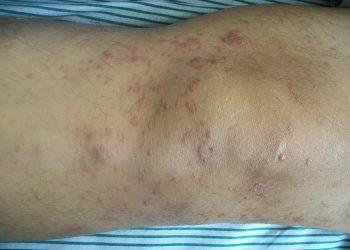 Thuốc diệt nấm mycosis là gì? Những điều bạn chưa biết