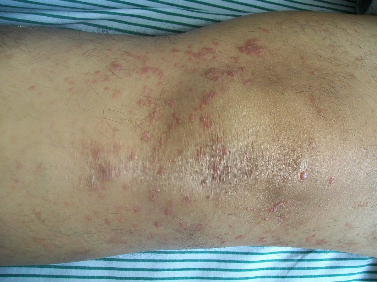 thuốc diệt nấm mycosis