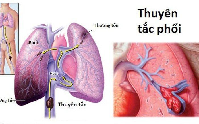 Thuyên tắc phổi trong thai kỳ