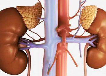 Tổn thương thận trong khối u đặc là gì? Những thông tin cần biết