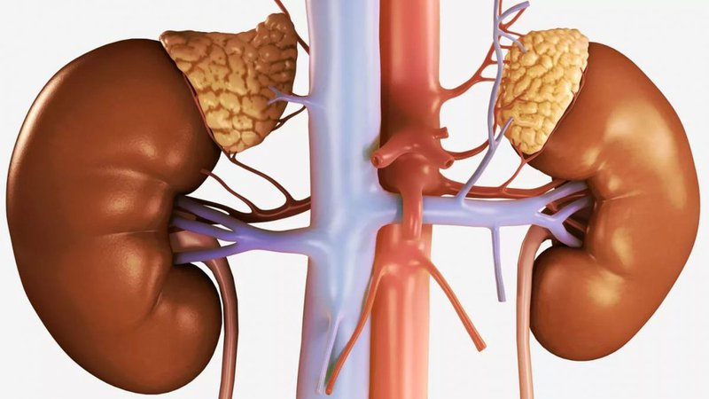 tổn thương thận trong khối u đặc