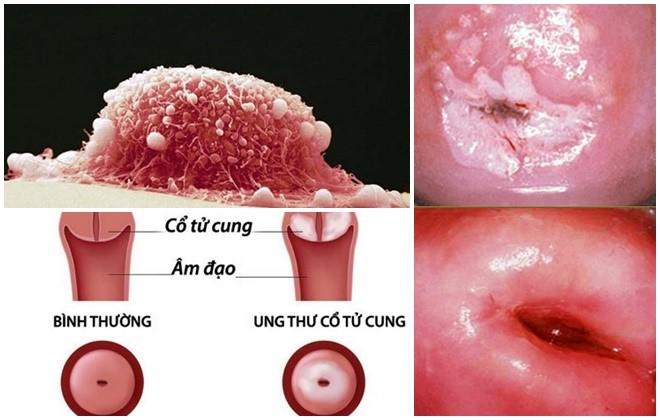 Tổn thương tiền ung thư cổ tử cung