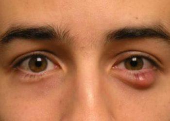 U biểu mô tuyến bã là gì? Nguyên nhân, triệu chứng và điều trị
