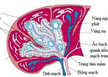 U lympho nguyên phát lách là gì? Nguyên nhân, triệu chứng, cách điều trị