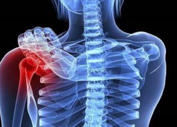 U lympho nguyên phát xương là gì? Thông tin về bệnh thường mắc