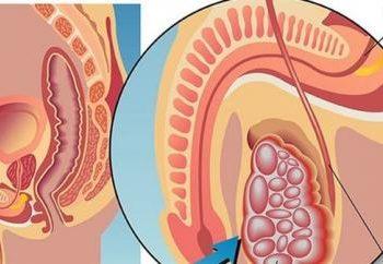 U lympho tinh hoàn là gì? Nguyên nhân, triệu chứng, chế độ ăn thích hợp