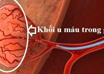 U mạch gan là gì? Tất tần tật các thông tin về bệnh