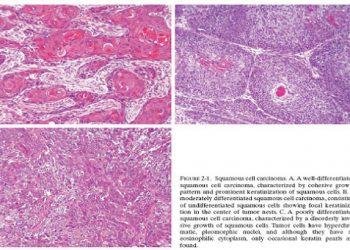 U mạch máu biểu mô là gì? Chi tiết triệu chứng, dấu hiệu, cách chữa