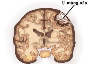 U màng não lồi là gì? Những nguyên nhân mới nhất về bệnh
