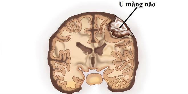 u màng não lồi