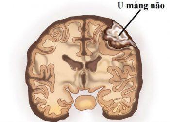 U màng não trong não thất là gì? Một số thông tin về bệnh