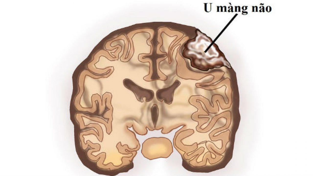 u màng não trong não thất