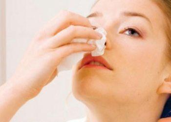 U máu mũi là gì? Nguyên nhân, triệu chứng và cách chữa trị