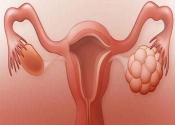 U nang là gì? Tổng quan chung về bệnh u nang