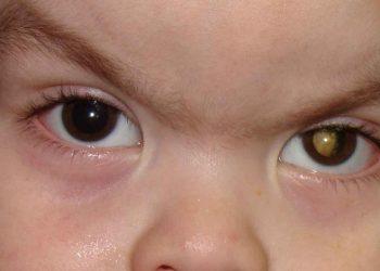 U nguyên bào võng mạc ở trẻ em là gì? Những thông tin mới nhất về bệnh