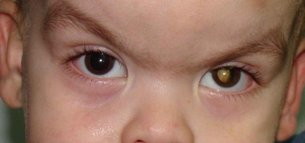 u nguyên bào võng mạc ở trẻ em