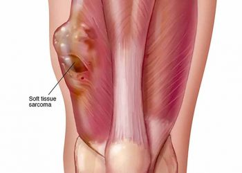 U sợi myxoid của sụn là gì? Tổng quan chung về bệnh