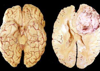 U thần kinh đệm bán cầu não ở trẻ em là gì? Tìm hiểu về bệnh