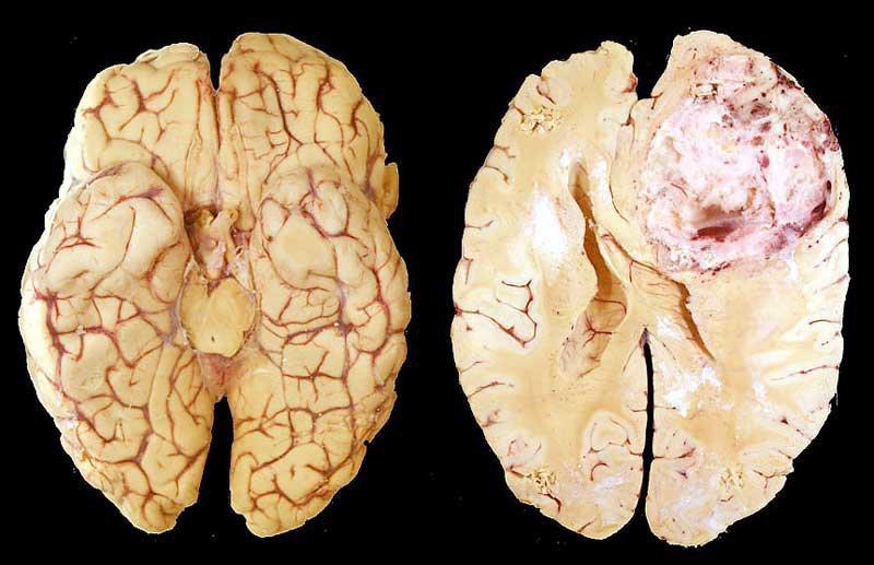 u thần kinh đệm bán cầu não ở trẻ em
