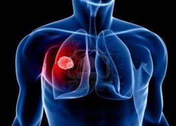 U trung biểu mô màng ngoài tim là gì? Những nguyên nhân, triệu chứng