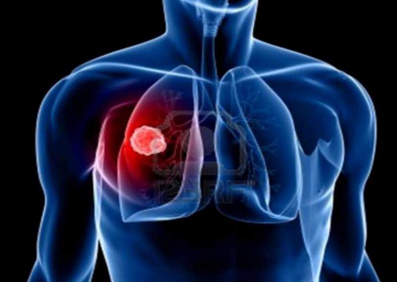 u trung biểu mô màng ngoài tim