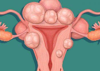 U xơ tử cung là gì? Những dấu hiệu, nguyên nhân và cách điều trị