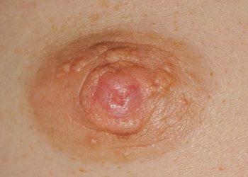 Ung thư biểu mô dạng chàm ngoài vú là gì? Tổng quan chung về bệnh