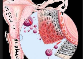 Ung thư biểu mô tế bào đáy của âm hộ là gì? Tổng quan chung về bệnh