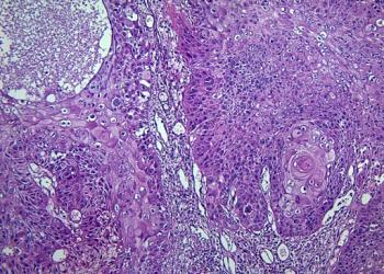 Ung thư biểu mô tuyến tiết là gì? Nguyên nhân, triệu chứng, chế độ ăn