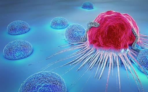 ung thư biểu mô tuyến