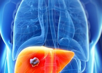 Ung thư gan di căn là gì? Phương pháp điều trị bệnh