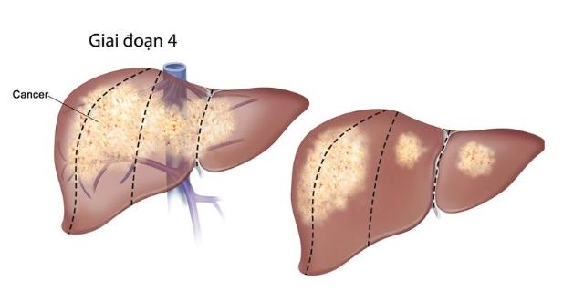 Các triệu chứng của ung thư gan di căn là gì?