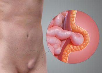 Ung thư viêm bìu là gì? Những triệu chứng thường gặp phải