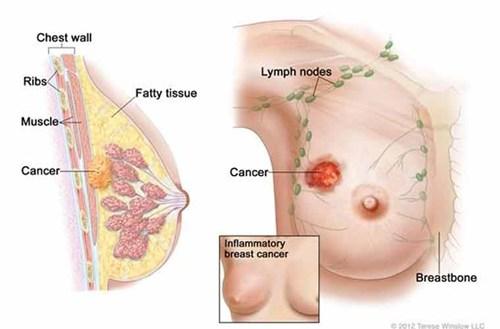 ung thư vú huyền bí