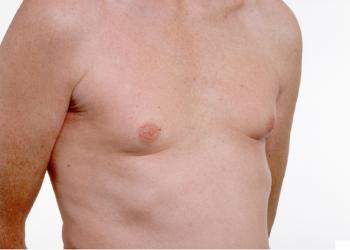 Ung thư vú ở nam giới là gì? Những nguyên nhân gây nên bệnh