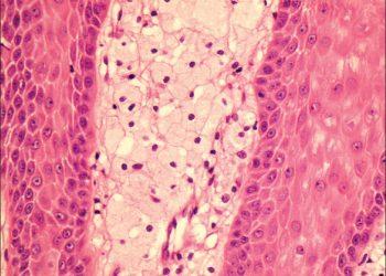 Verrucous Xanthoma of the Vulva là gì? Dấu hiệu nhận biết và cách chữa