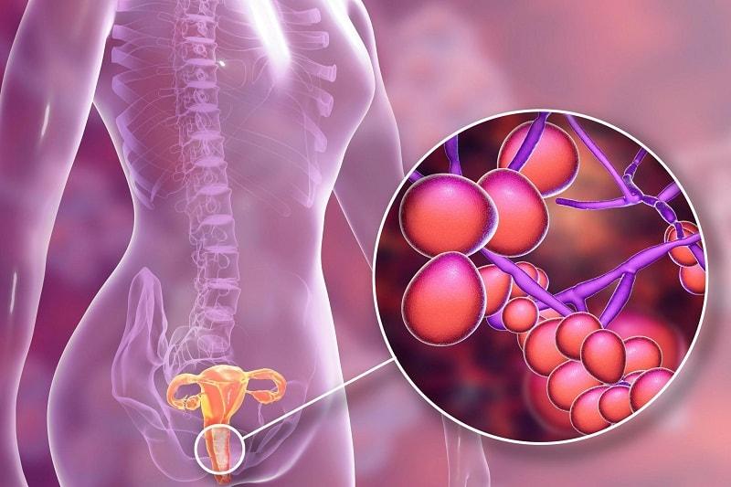 Viêm âm đạo do vi khuẩn