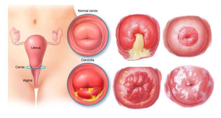 Viêm lộ tuyến cổ tử cung là gì?