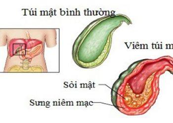 Viêm túi mật cấp tính trong thai kỳ là gì? Nguyên nhân và cách chữa